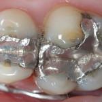 mercury-fillings (1)